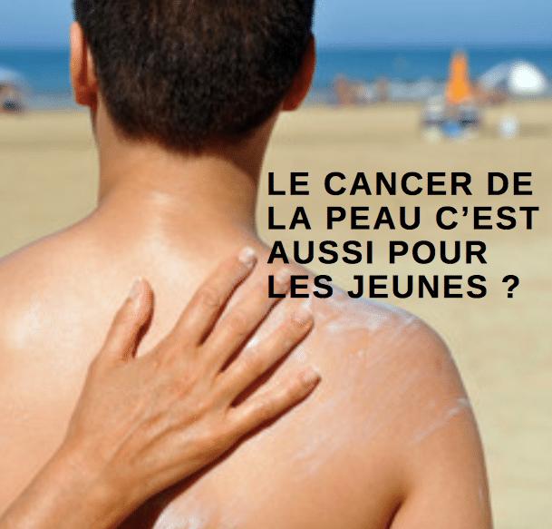 LE CANCER DE LA PEAU C'EST AUSSI POUR LES JEUNES ?
